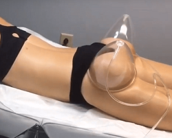 vacuum therapy treatment