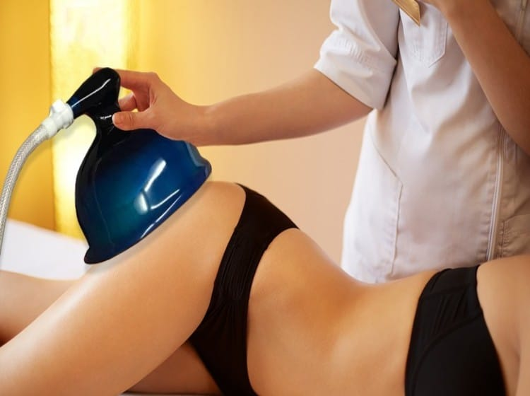 vacuum therapy buttocks