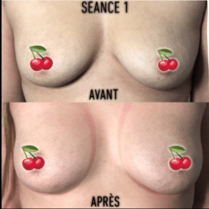 Vacuum therapy breast lift before and after